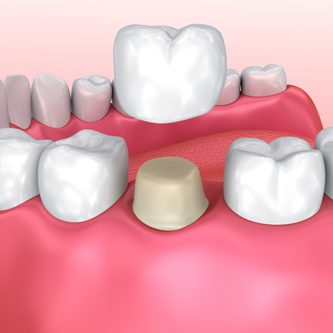 Dental-Crown-1