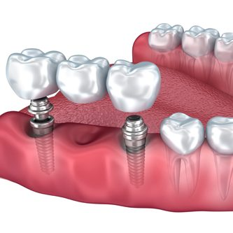 dental-bridges4