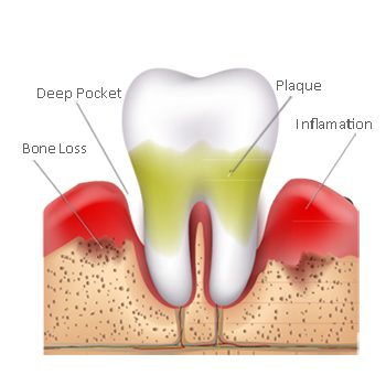 periodontis-2